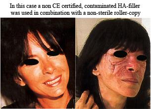 dermaroller-infektion