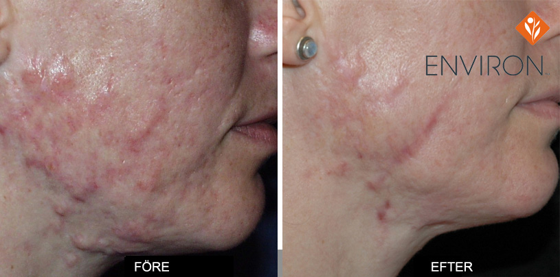 acne scar steroid injection