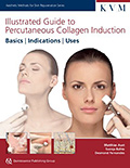 illustrated-guide-to-percutaneous-collagen-induction-small